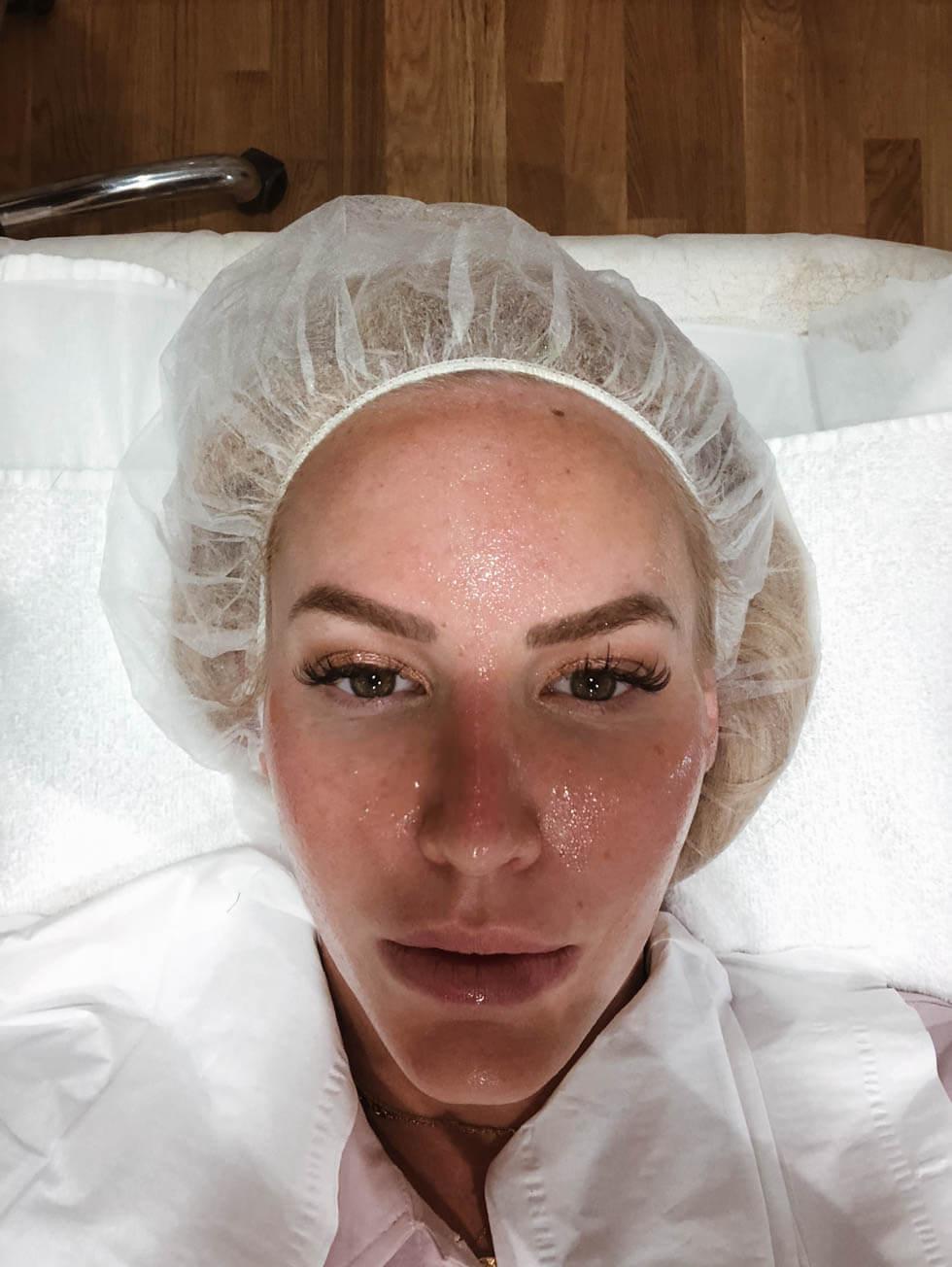 Microdermabrasion- Finslipa huden, damsug och bli kvitt grova porer._-11