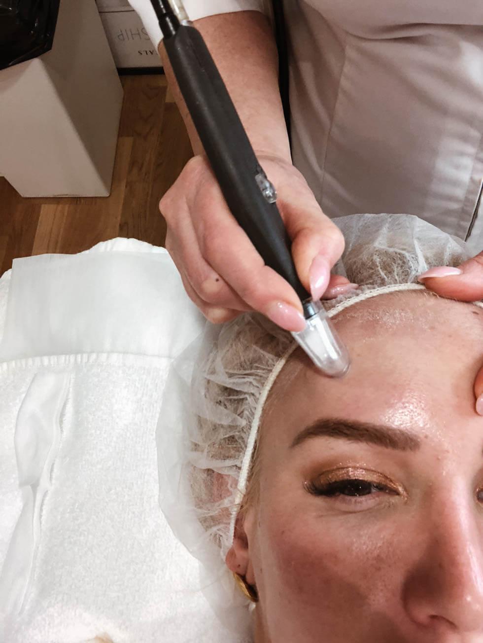 Microdermabrasion- Finslipa huden, damsug och bli kvitt grova porer._-5